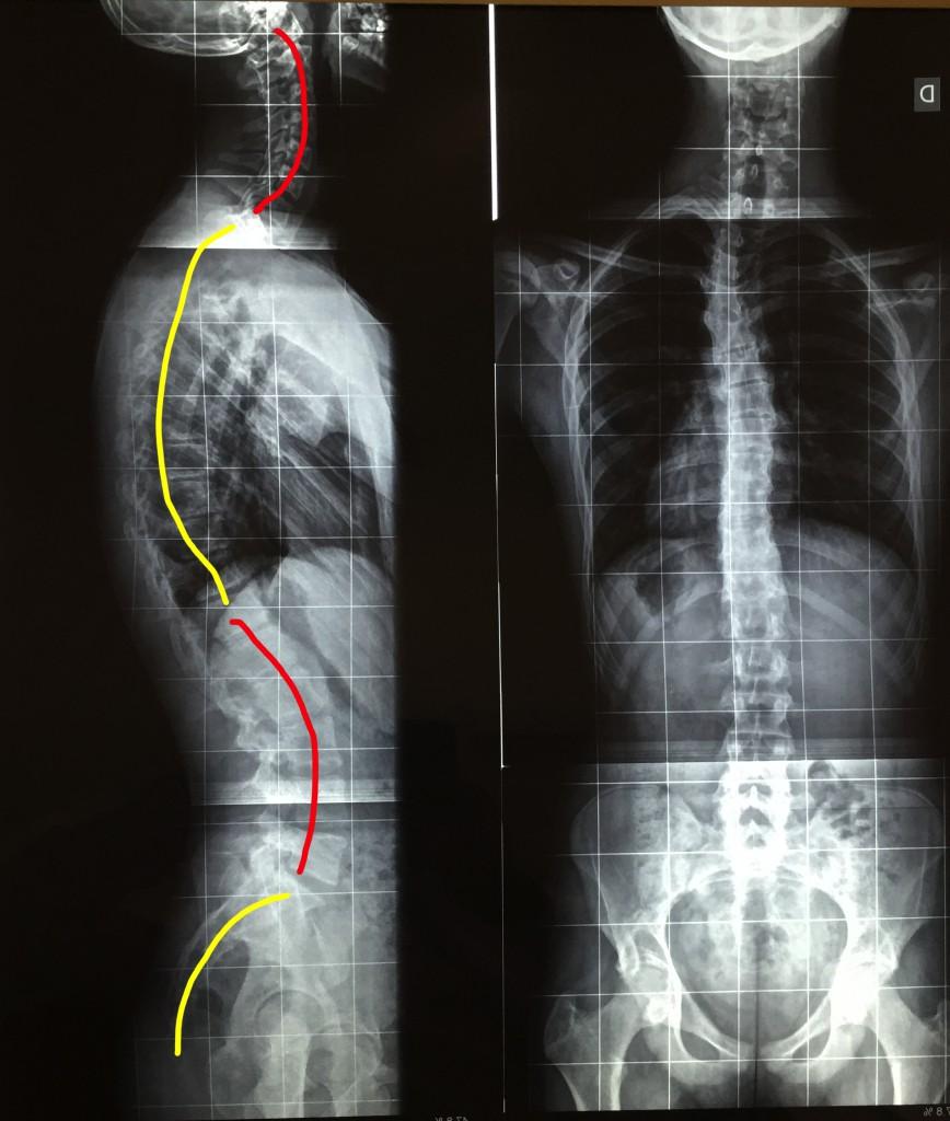 coluna_vertebral